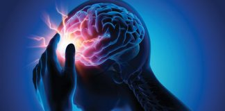 How common are seizures after a stroke?